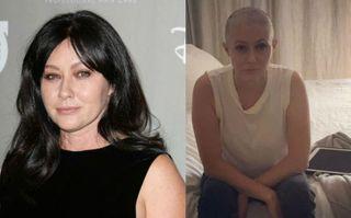 Фото: Шеннен Доэрти до и после химиотерапии, коллаж от pokatim.ru