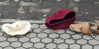 В центре Москвы трамвай отрезал ноги пенсионерке