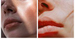 Отёки и высыпания — Почему привычный уход портит кожу летом