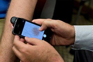 IPhone сможет диагностировать рак кожи
