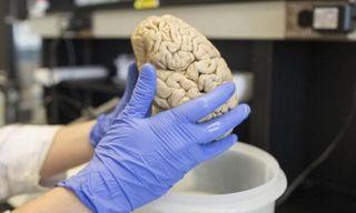 Учёные создали трёхмерную модель ткани мозга человека