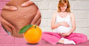 Причины появления и как побороть «апельсиновую корку» во время и после беременности, рассказала врач