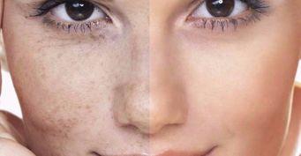 3 сыворотки отпигментации кожи вернут ровный тон