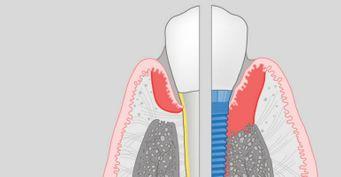 Диагностика периимплантита
