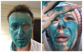 Навальный пострадал отзлоумышленника, Инстасамка скопировала нападение. Фотоколлаж: Александра Майская, Покатим. ру