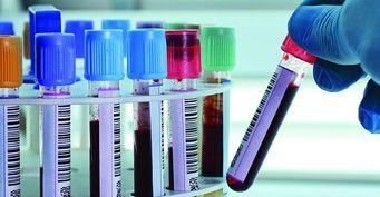 Что такое КП в анализе на гепатит?