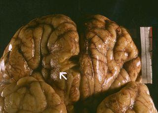 В водопроводе Луизианы обнаружили амёбу пожирающую мозг