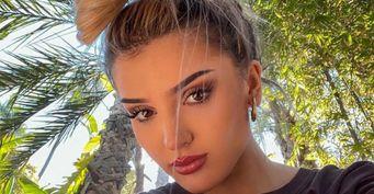 Дина Саева поразила подписчиков неудачным фото лица соследами отакне