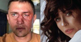 Состоитсяли свадьба Прилучного: Новые версии избиения актёра— расследование
