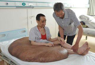 В Китае удалили самую крупную опухоль в мире