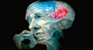 Ученые: Головной мозг может самостоятельно бороться с болезнью Альцгеймера